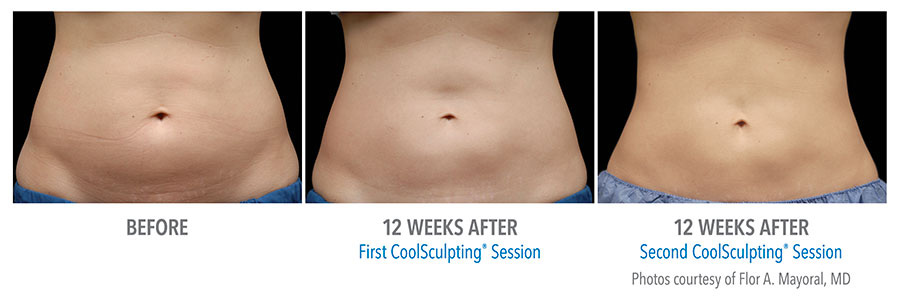 Eliminate stubborn fat safely and effectively with CoolSculpting.