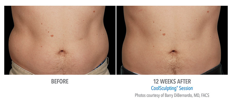 Eliminate body fat safely and quickly with CoolSculpting.