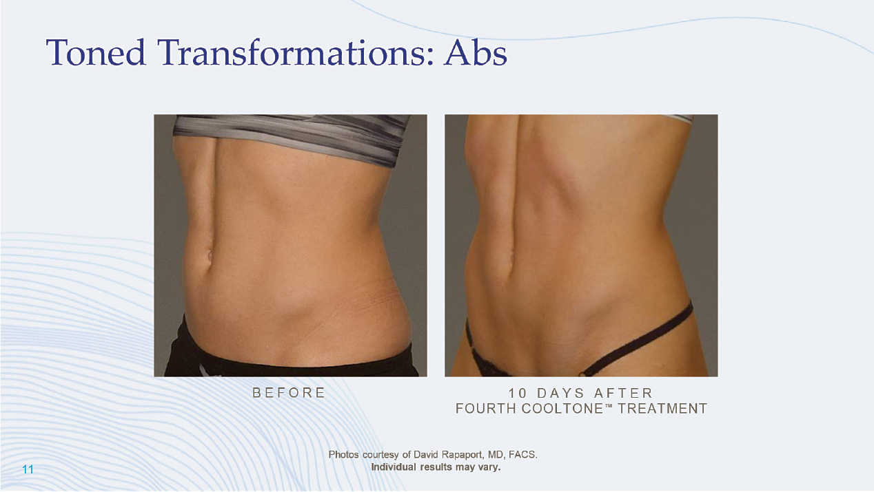 cooltone abs
